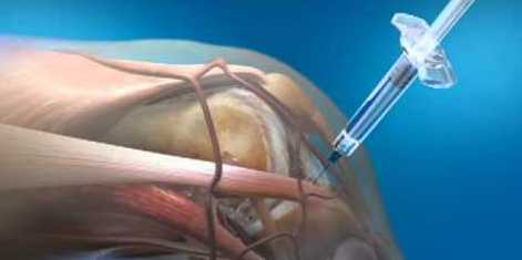 Costochondral Joint Injections